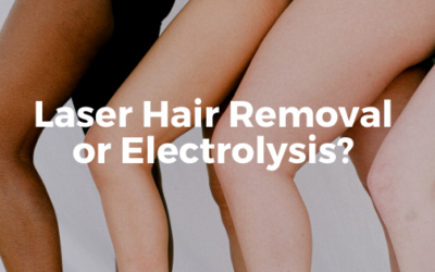 Laser Hair Removal or Electrolysis? Which Method is Better for Women with PCOS?