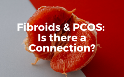 Fibroids & PCOS: Is there a Connection?