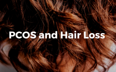 PCOS and Hair Loss